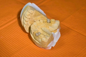 Information about Invisalign 32